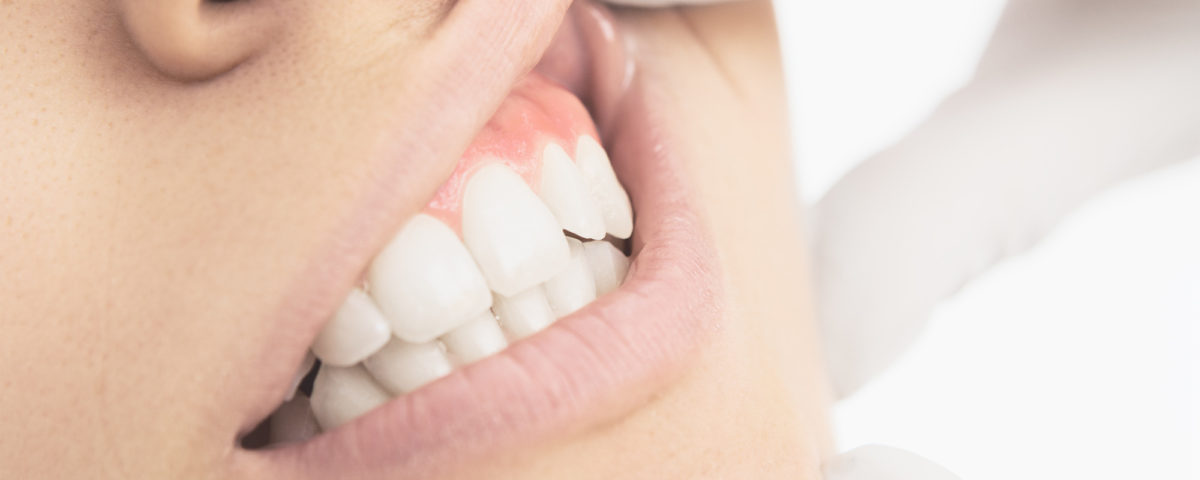 individual tooth implants fort payne